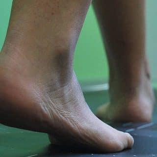 estudio de la pisada del pie en Zaragoza podologo