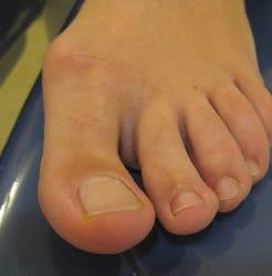 silicona pies tratamientos podologia