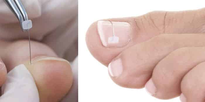 reconstrucción de uñas de los pies