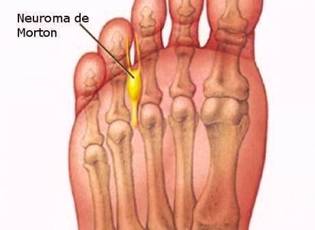 neuroma de morton_anatomia_podologa de Porras