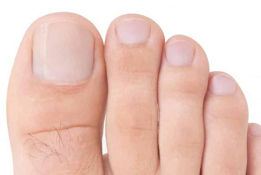 uñas de pie limadas_pieamarillo