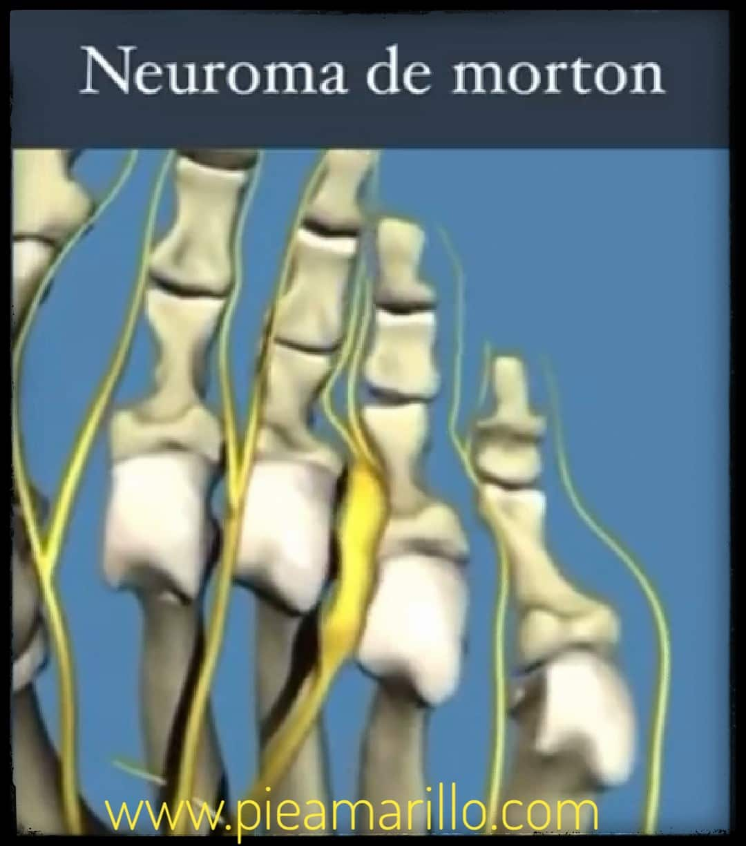 anatomia-neuroma-morton_pieamarillo_25-04-2021.jpeg